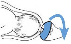 pessaire-de-cerclage-grossesse